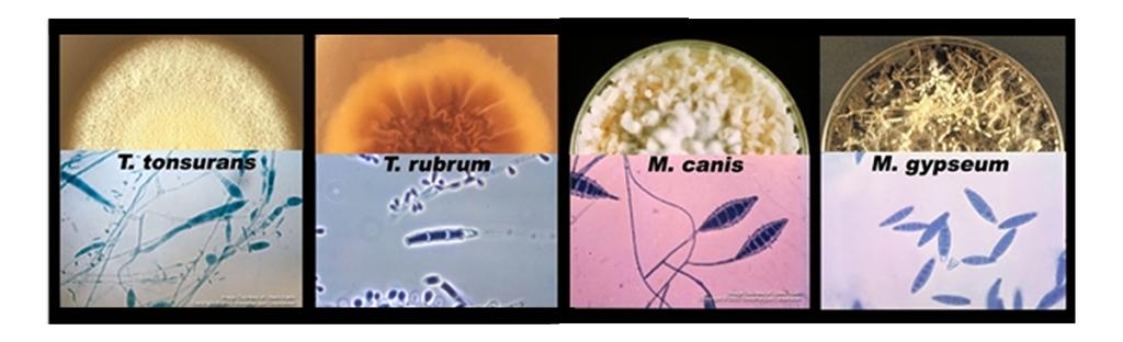 dermatophytes distriwel